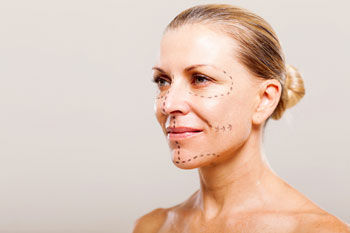 Facelifting ohne Operation
