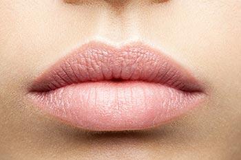 Lippenkorrektur mit Hyaluronsäure