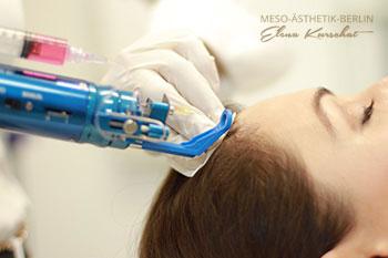 Mesohair gegen Haarausfall