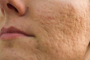 Aknenarbenbehandlung mit Hyaluronsäure